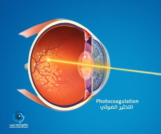 ليزر الشبكية لعلاج تمزق شبكية العين
