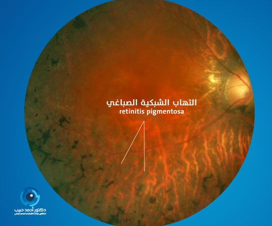 التهاب-الشبكية-الصباغي