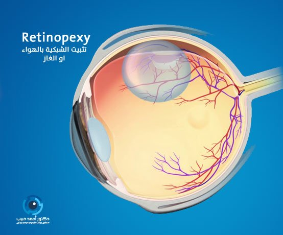 حقن الغاز او الهواء لتثبيت شبكية العين