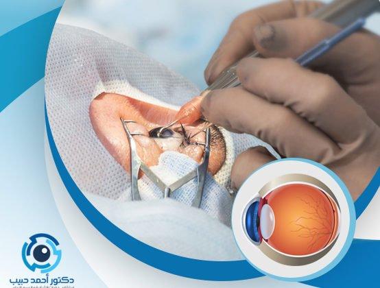 حقن العين لعلاج الشبكية