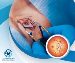 علاج اعتلال الشبكية السكري بالليزر