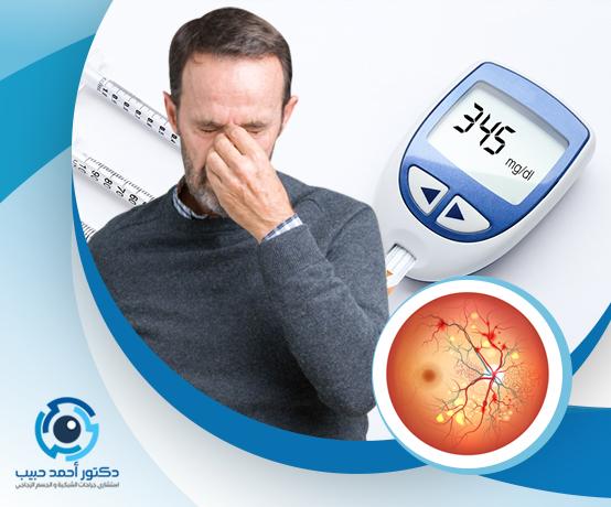 علاج شبكية العين لمرضى السكري
