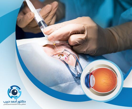 كيفية حقن العين لعلاج الشبكية