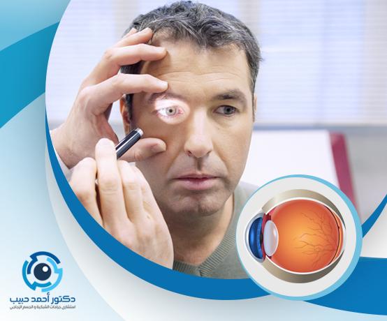 امراض العين الشبكية