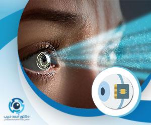 زراعة شبطية العين
