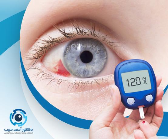علاج نزيف العين لمرضي السكر